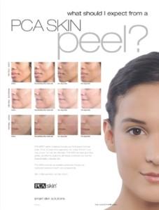 PCA Treatments